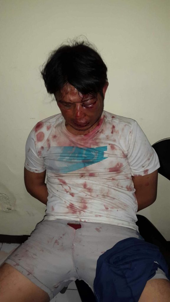 Memalukan, Oknum Polisi di Bandung Babak Belur Setelah Kepergok Mencuri Motor